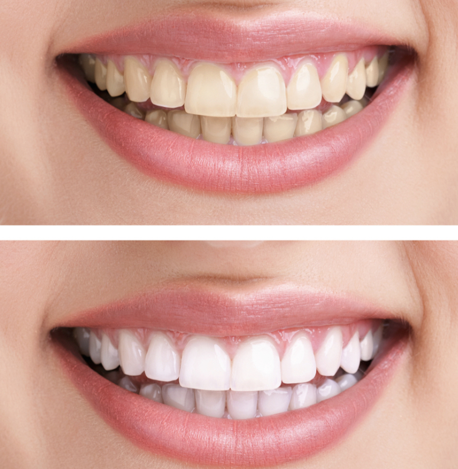 Before_and_After_Porcelain_veneers.jpg
